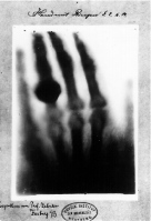 First_medical_X-ray_by_Wilhelm_Röntgen_of_his_wife_Anna_Bertha_Ludwig's_hand_-_18951222